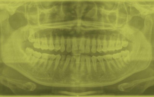 opg-dental-imaging-s